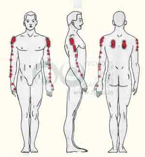 Trigger points on the infraspinatus  cause pain in down till wrist