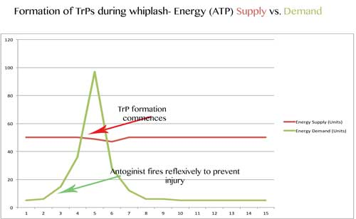 Graph depicting formation of Trigger Points  due to whiplash www.schoolofthaimassage.com